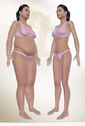Liposuction resmi