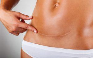 Ameliyat Yanık ve yara izlerinin tedavisi